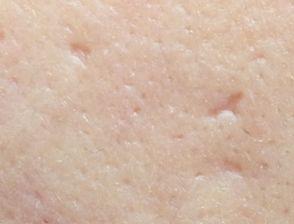 cicatrici post acnee